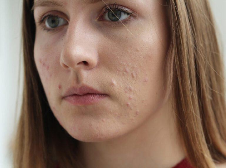 Gepunktetes Gesicht passt mir nicht. Was hilft beim Kampf gegen die Akne?