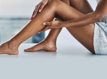 Dehnungsstreifen entstehen sowohl bei Frauen als auch bei Männern. Sie werden durch verschiedene Faktoren verursacht, aber die Entstehung verläuft identisch. Wenn Sie eine glatte und gesunde Haut haben wollen, überprüfen Sie, was zu vermeiden ist, wie Sie die Dehnungsstreifen verhindern können und auf welche Art und Weise sie entstehen?