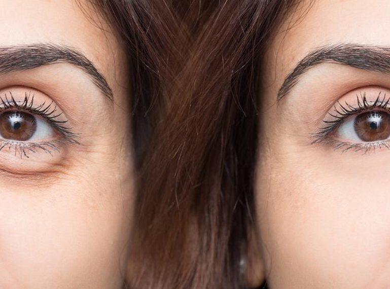 Karboxytherapie – Behandlung für schöne Haut und gesunde Haare