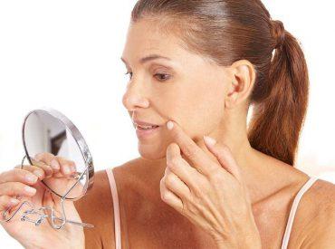 Falten, fahle Haut, Straffheitsverlust, auch die Änderung der Gesichtsform sind für reife Haut charakteristisch. Es gibt jedoch auch andere Symptome: Das sind Verfärbungen und ein ungesundes Hautbild. Wie sollten Sie reife Haut pflegen? Es stellt sich heraus, dass die richtige Pflege in diesem Alter viel ändern kann! Erfahren Sie, wie Sie reife Haut pflegen sollten.